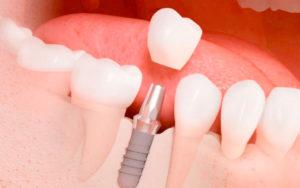 Lee más sobre el artículo 🦷 ¿Qué son los implantes dentales?