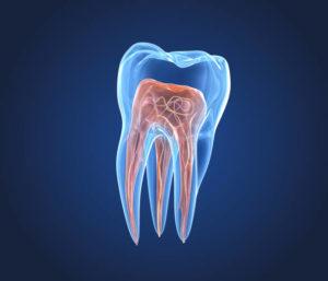 Imagen de endodoncia