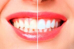 Lee más sobre el artículo 🦷 Blanqueamiento Dental en Santander