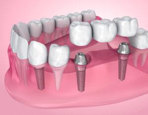 Lee más sobre el artículo 🦷 Implantes dentales de carga inmediata en Santander