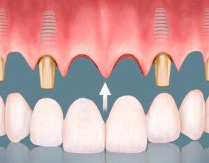 Lee más sobre el artículo 🦷 Prótesis Dentales en Santander