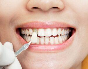 Lee más sobre el artículo 🦷 Carillas Dentales en Santander