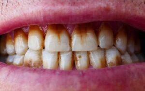 Lee más sobre el artículo 🦷 Manchas en los dientes: Causas y tratamientos