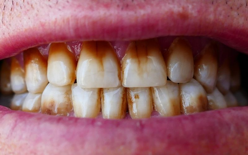 En este momento estás viendo 🦷 Manchas en los dientes: Causas y tratamientos