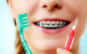 Lee más sobre el artículo 🦷 Cuidado y Mantenimiento de la Ortodoncia