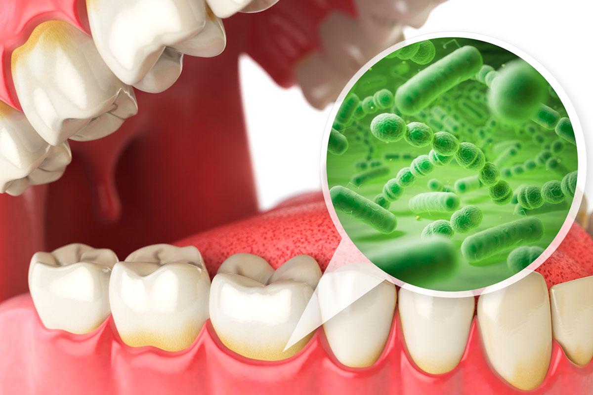 En este momento estás viendo 🦷 La enfermedad periodontal durante el COVID-19